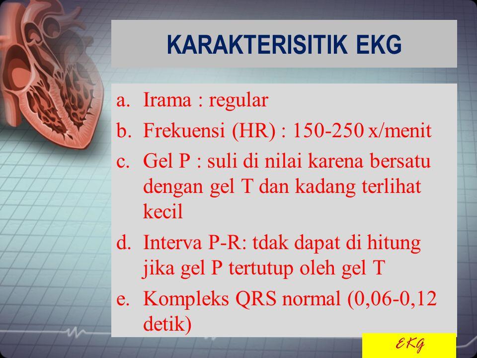 KARAKTERISITIK EKG Irama : regular Frekuensi (HR) : 150-250 x/menit