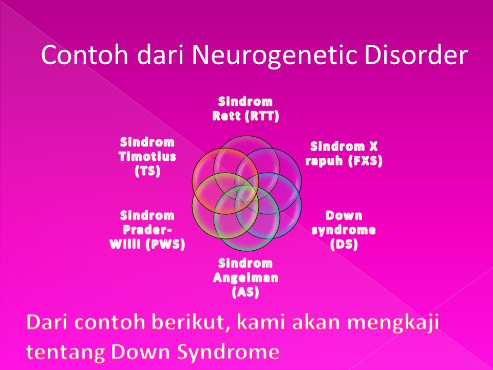 Sindrom Prader-Willi (PWS)