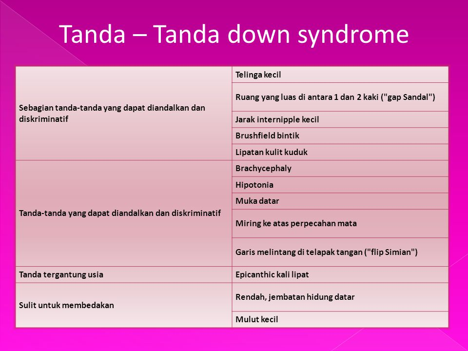 Tanda – Tanda down syndrome