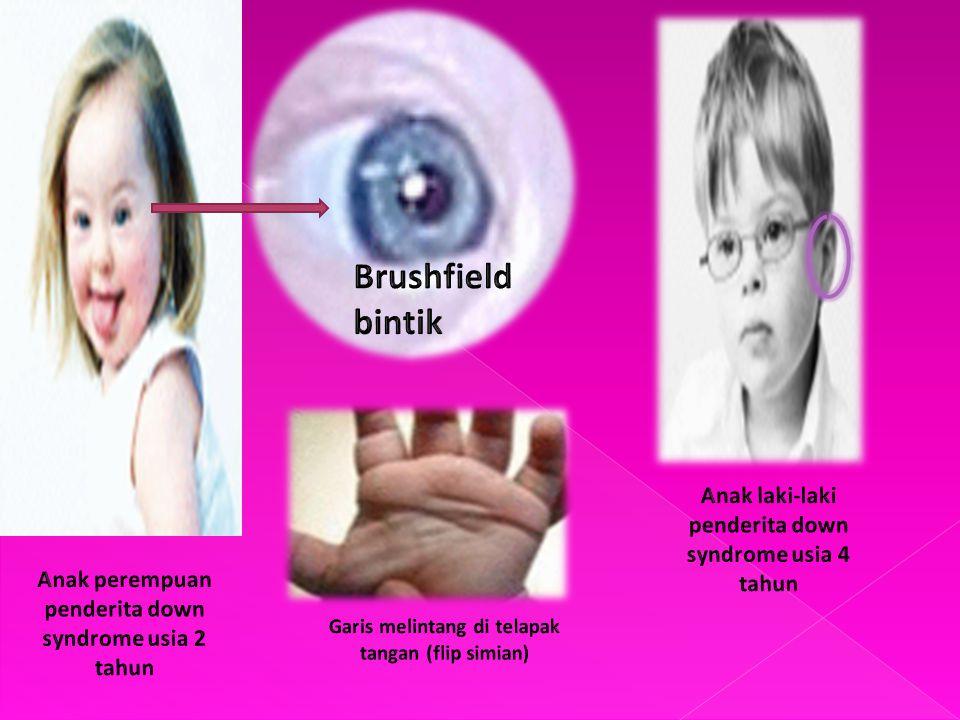 Brushfield bintik Anak laki-laki penderita down syndrome usia 4 tahun