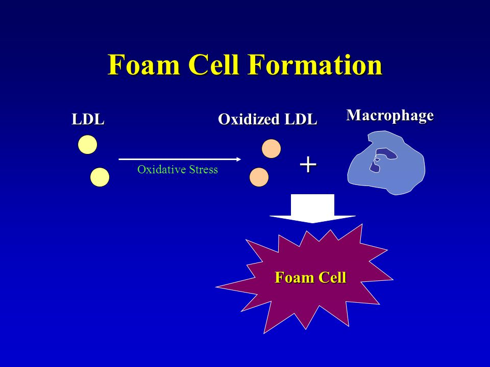 Foam Cell Formation + Macrophage LDL Oxidized LDL Foam Cell