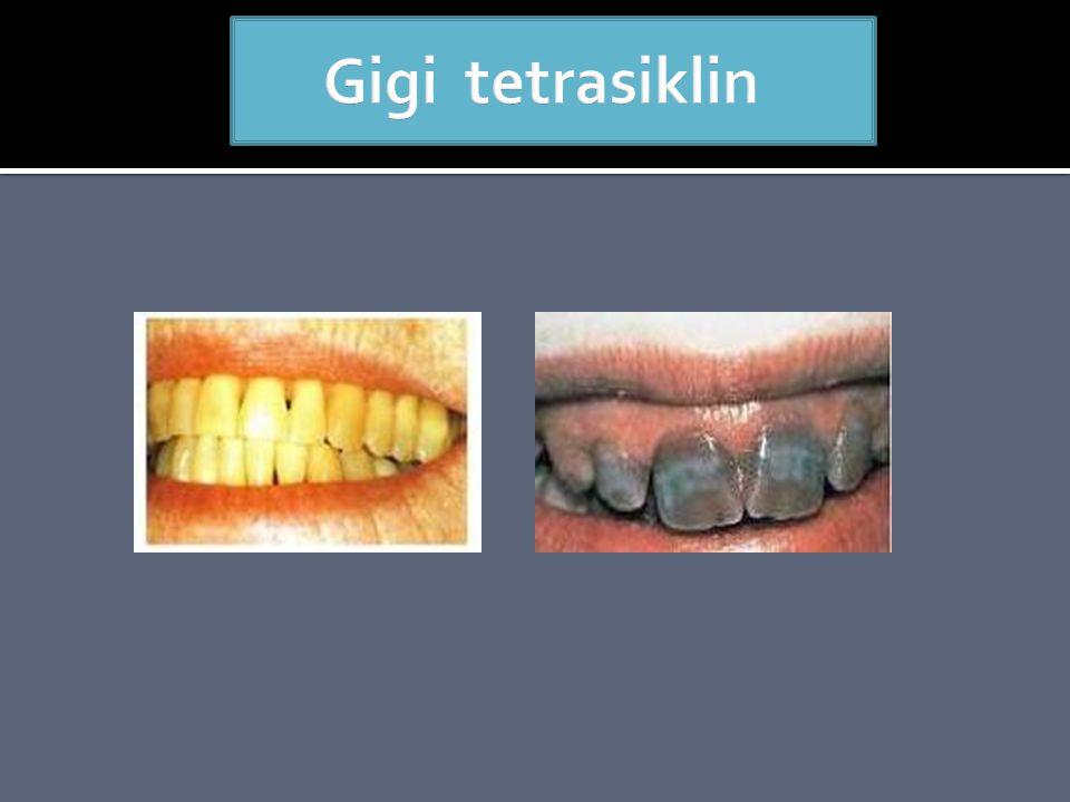 Gigi tetrasiklin
