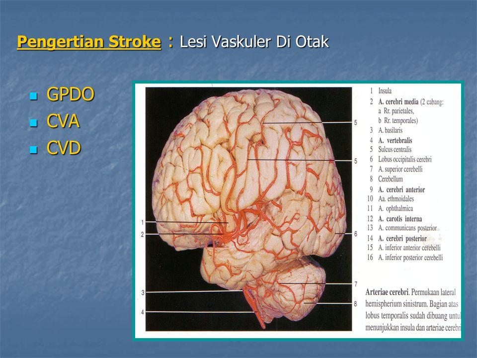 Pengertian Stroke : Lesi Vaskuler Di Otak