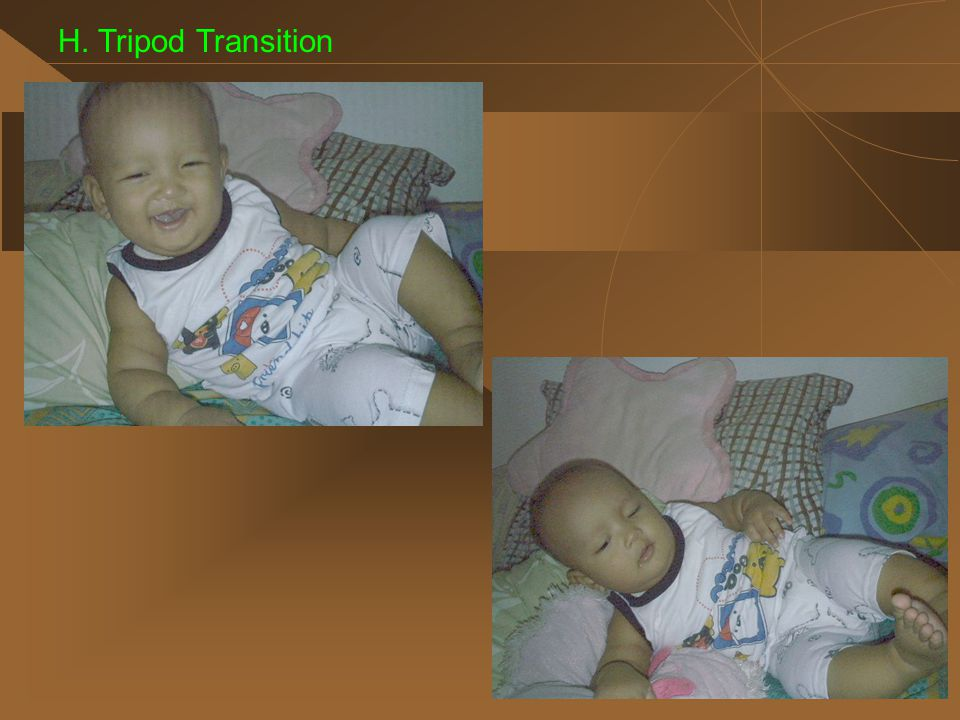 H. Tripod Transition