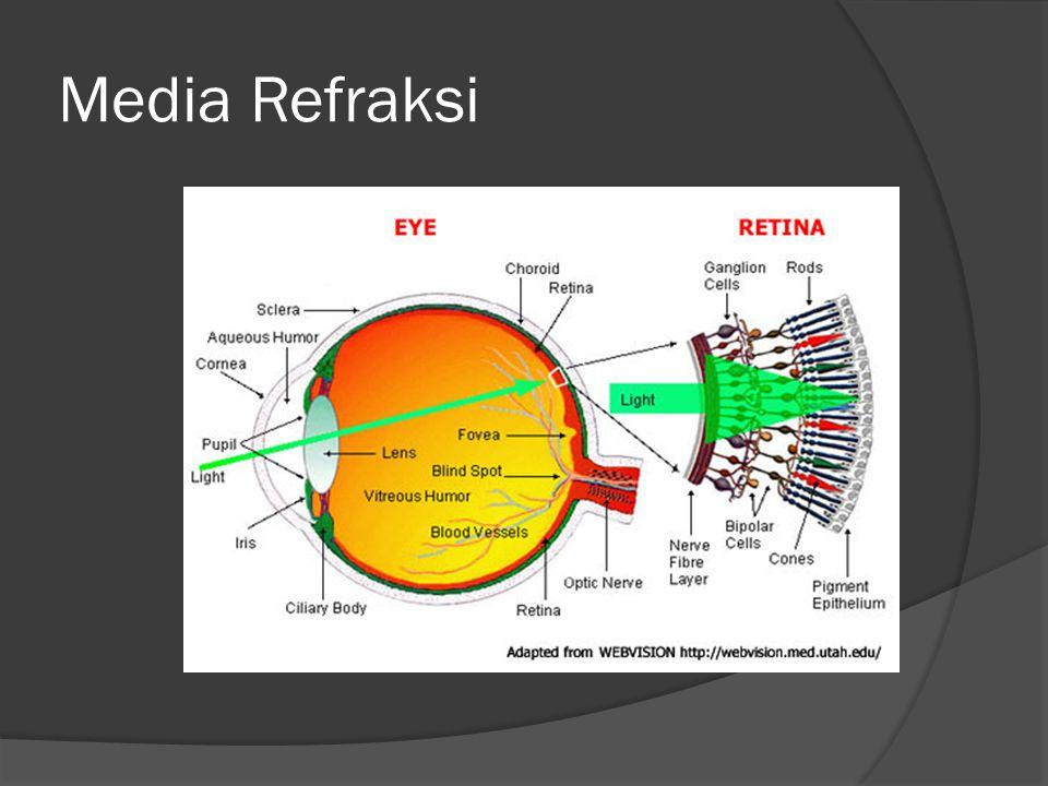 Media Refraksi