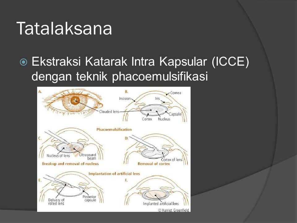 Tatalaksana Ekstraksi Katarak Intra Kapsular (ICCE) dengan teknik phacoemulsifikasi