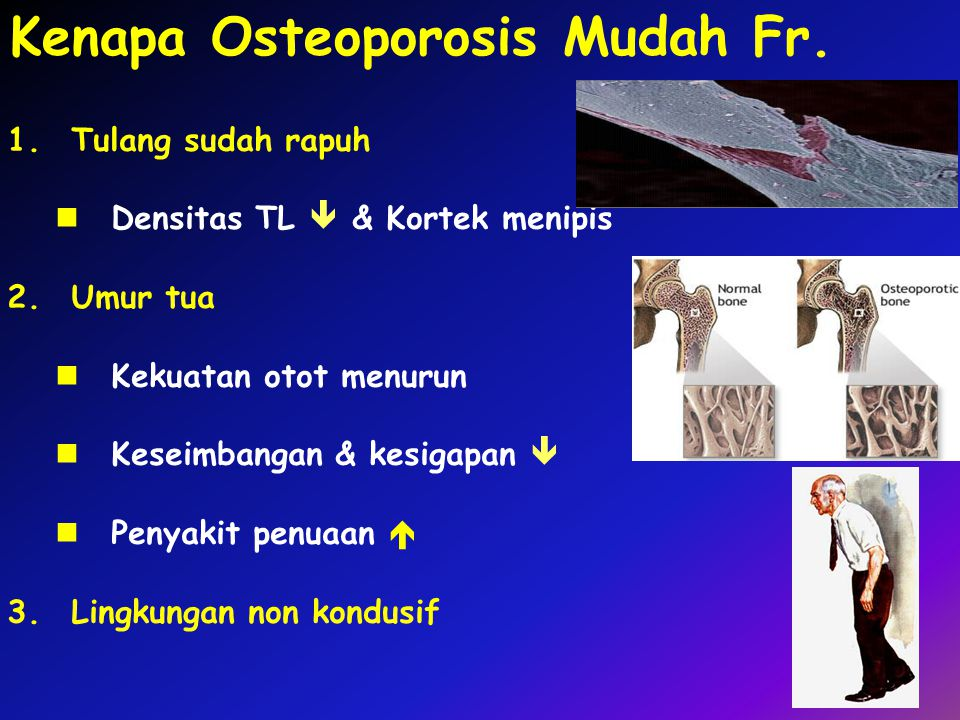 Kenapa Osteoporosis Mudah Fr.