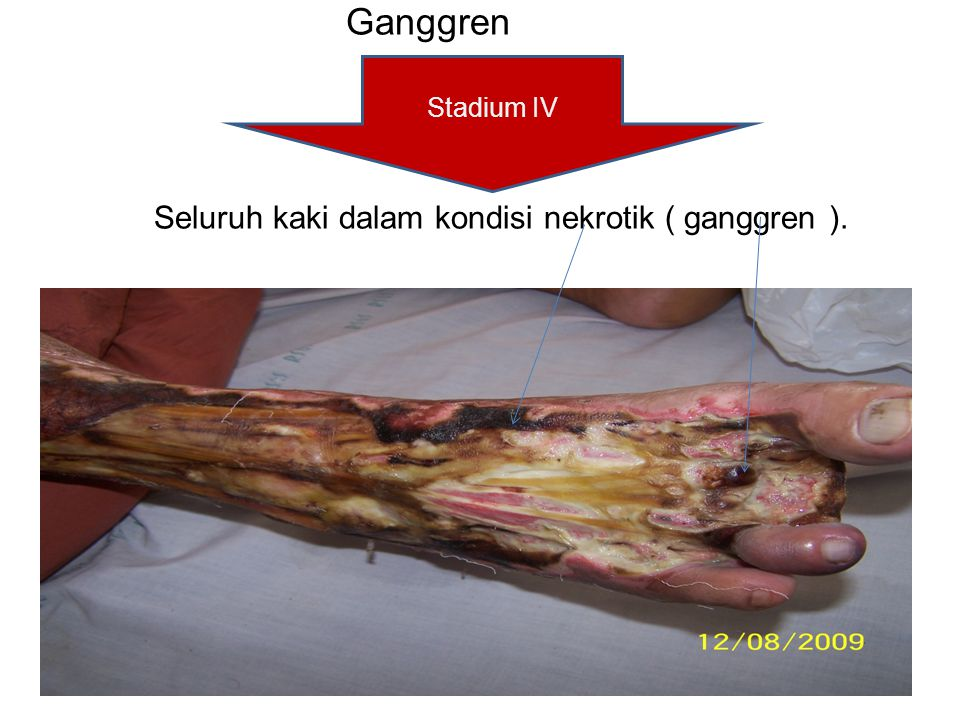 Ganggren Seluruh kaki dalam kondisi nekrotik ( ganggren ).