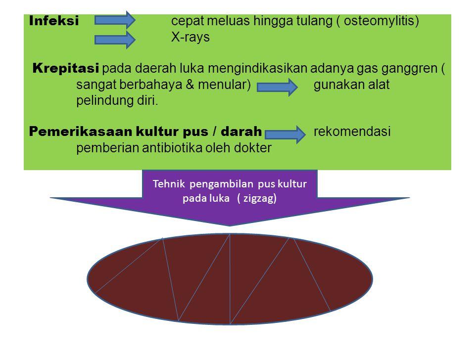 Tehnik pengambilan pus kultur pada luka ( zigzag)