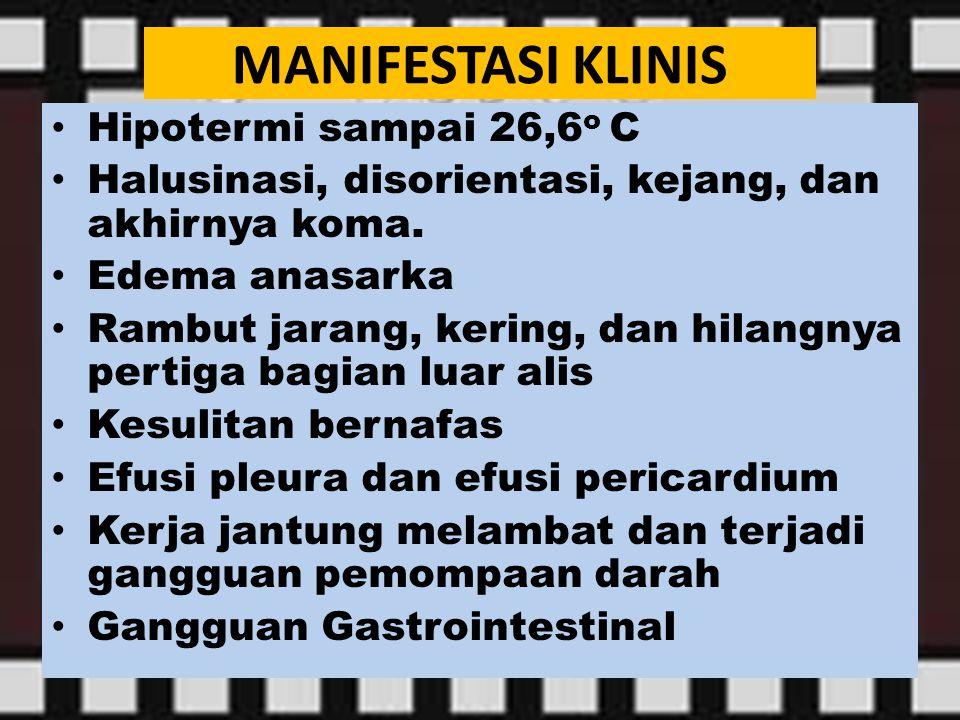 MANIFESTASI KLINIS Hipotermi sampai 26,6o C