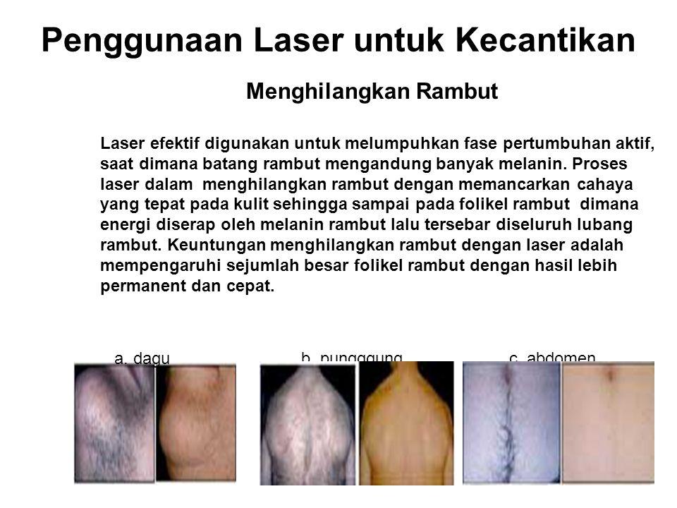 Penggunaan Laser untuk Kecantikan
