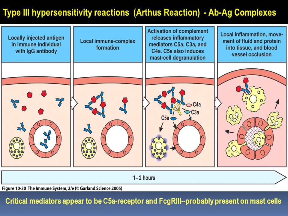 Type III hypersensitivity reactions (Arthus Reaction) - Ab-Ag Complexes