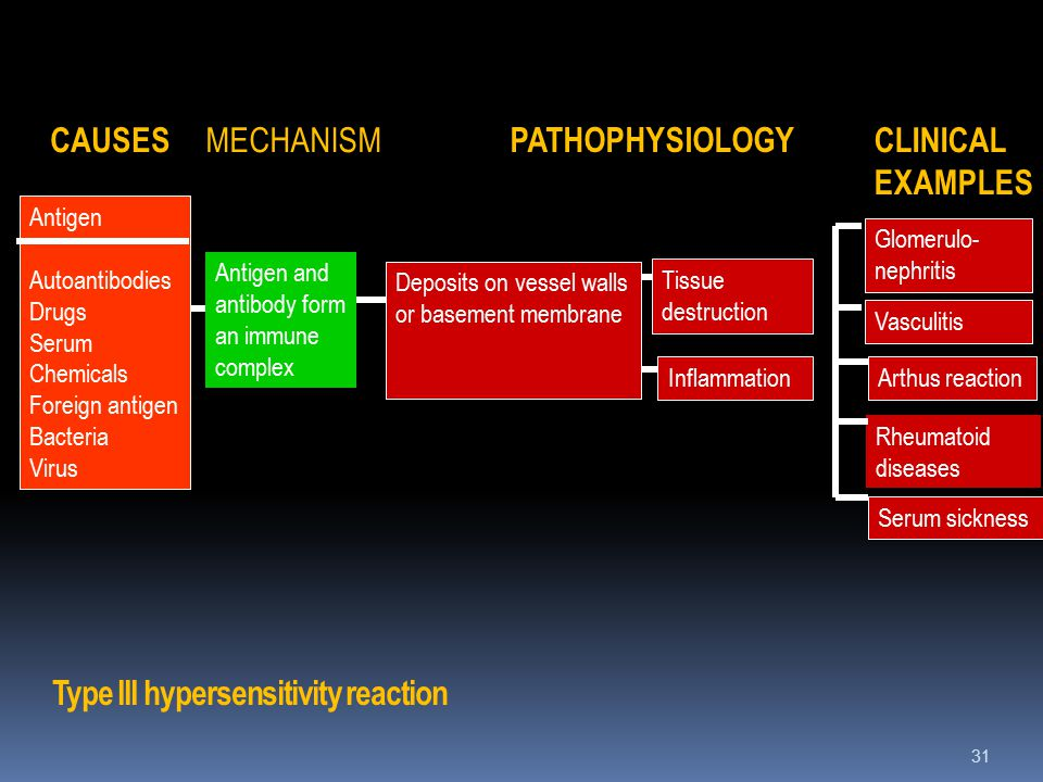 Type III hypersensitivity reaction