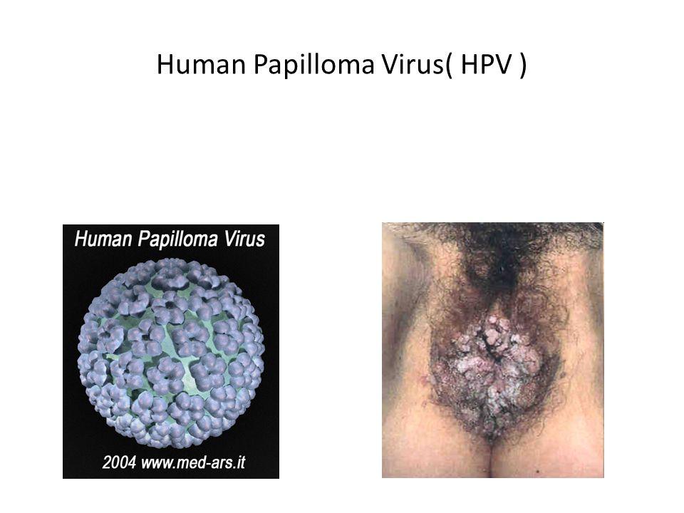 Human Papilloma Virus( HPV )