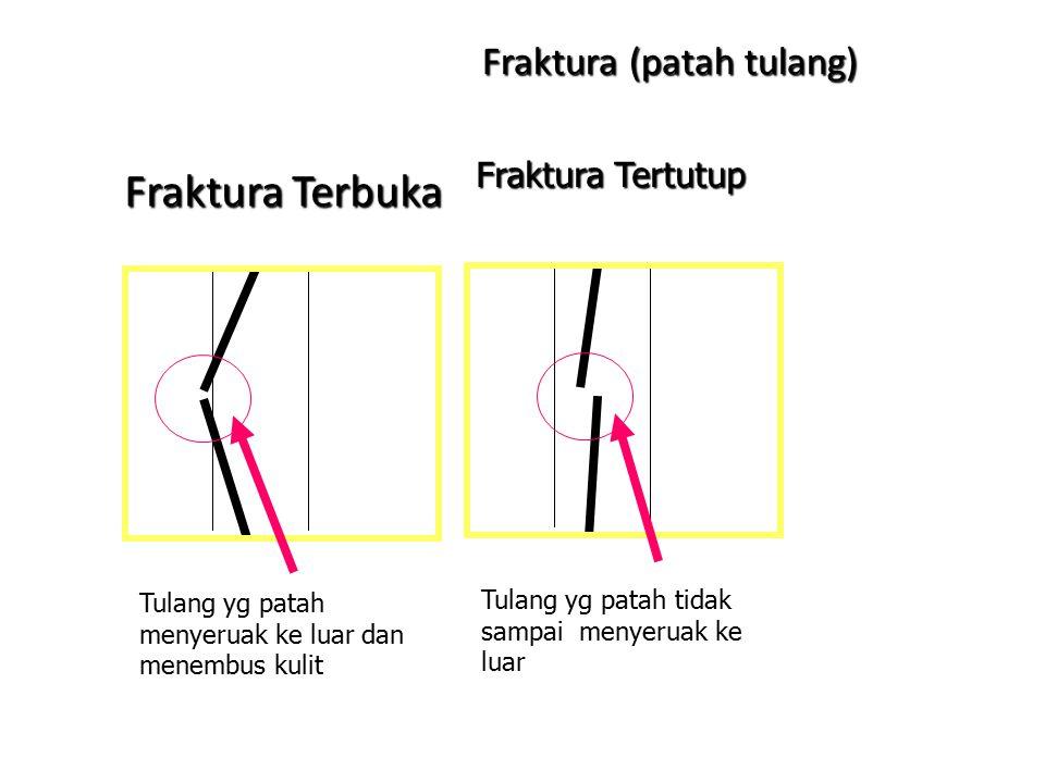 Fraktura (patah tulang)