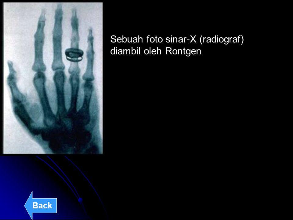 Sebuah foto sinar-X (radiograf) diambil oleh Rontgen