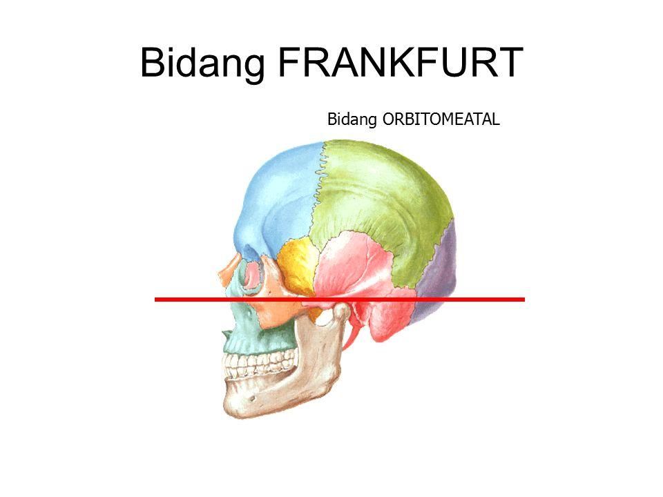 Bidang FRANKFURT Bidang ORBITOMEATAL