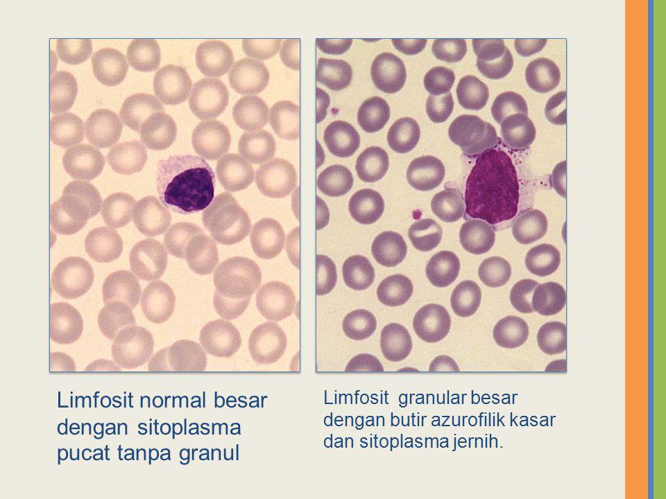 Limfosit normal besar dengan sitoplasma pucat tanpa granul