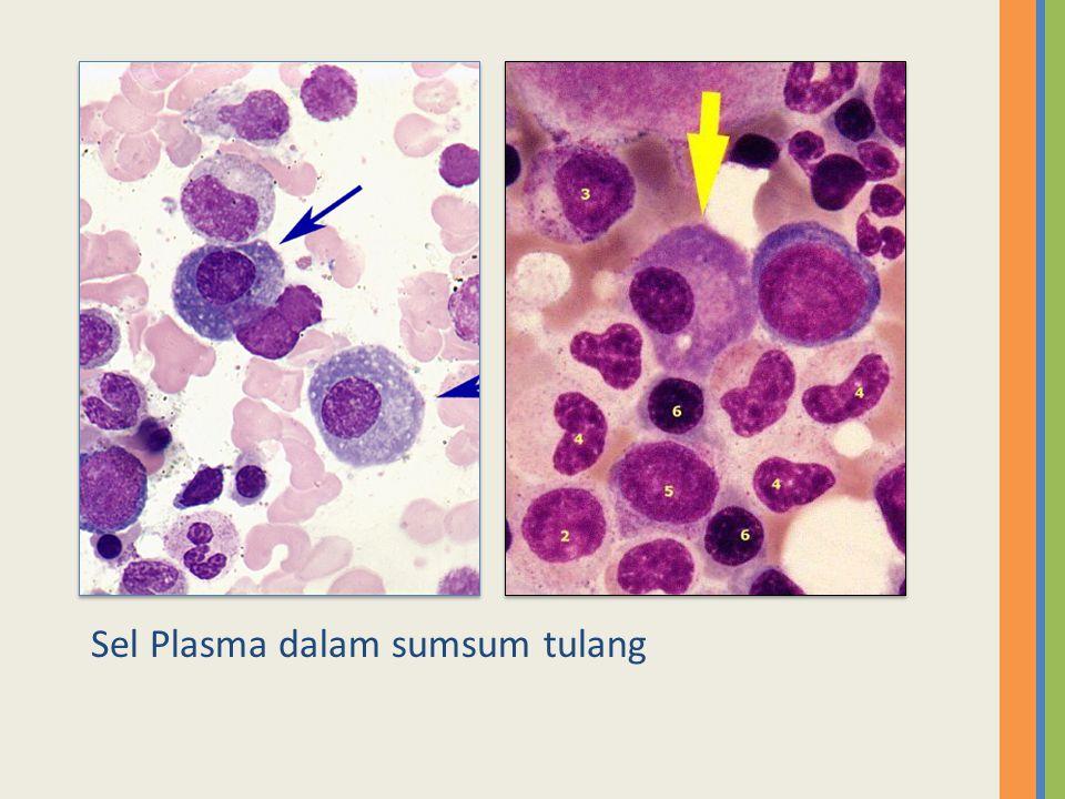Sel Plasma dalam sumsum tulang