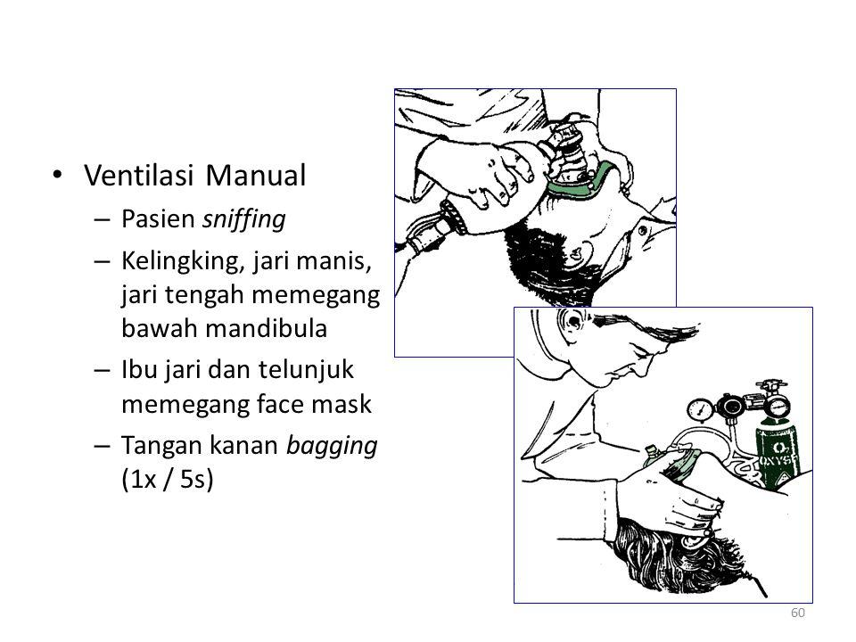 Ventilasi Manual Pasien sniffing