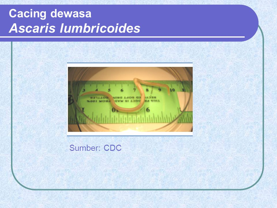 Cacing dewasa Ascaris lumbricoides
