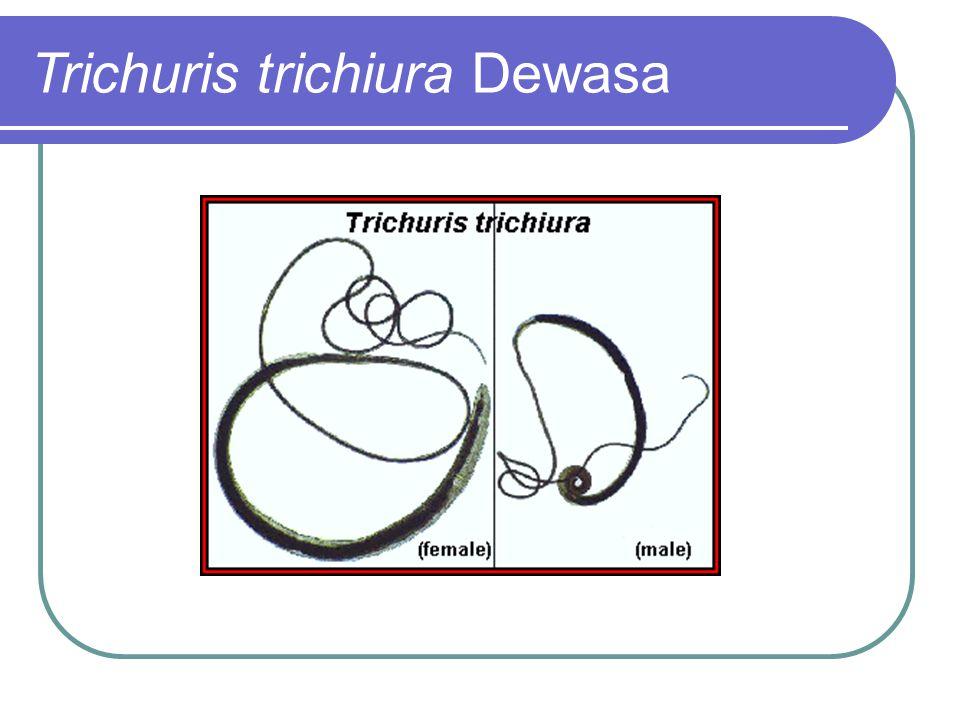 Trichuris trichiura Dewasa