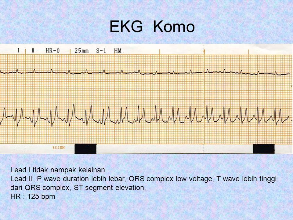 EKG Komo Lead I tidak nampak kelainan