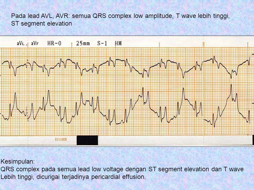 Pada lead AVL, AVR: semua QRS complex low amplitude, T wave lebih tinggi,