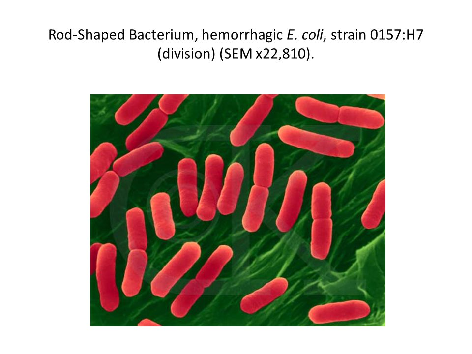 Rod-Shaped Bacterium, hemorrhagic E