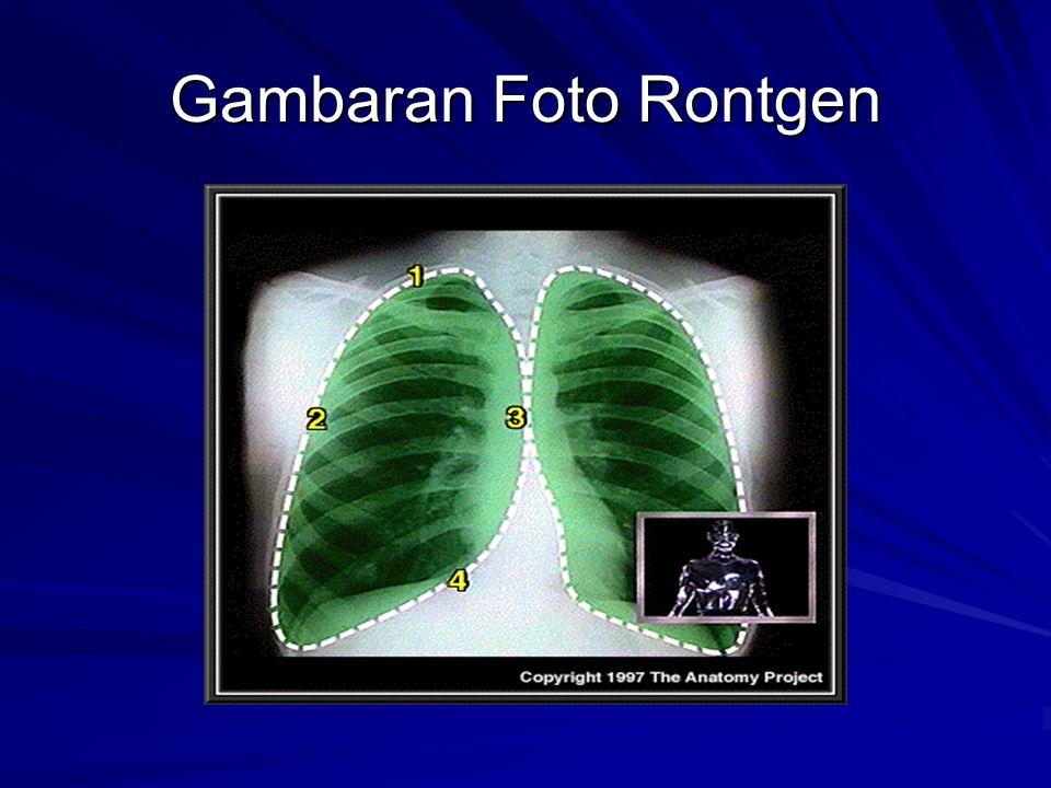 Gambaran Foto Rontgen