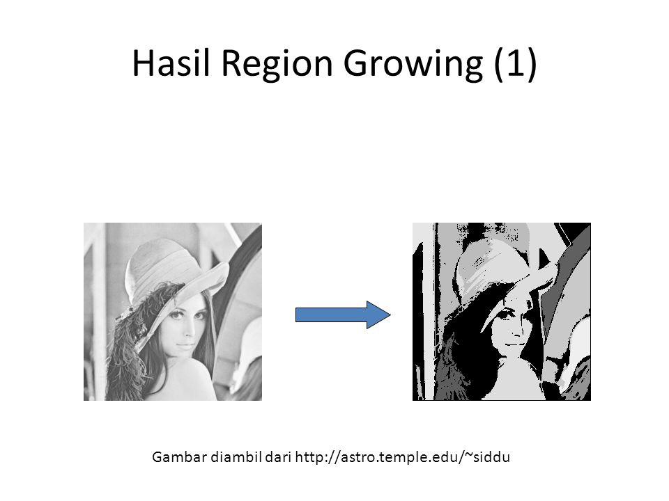 Hasil Region Growing (1)