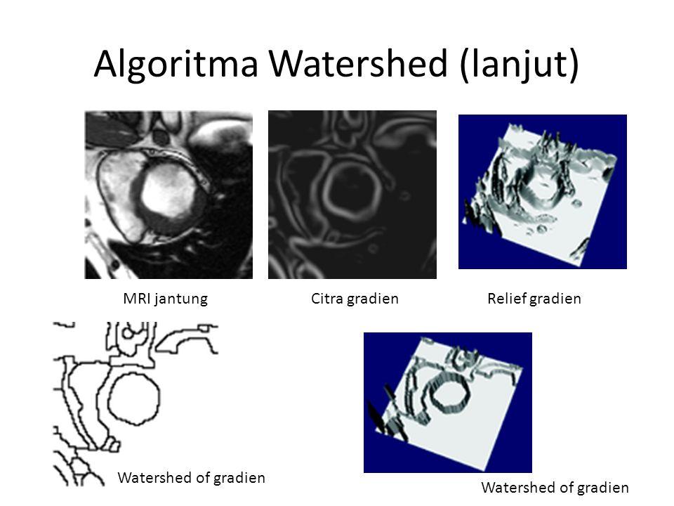 Algoritma Watershed (lanjut)