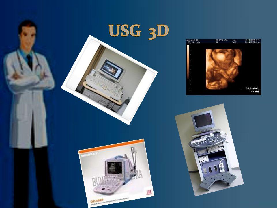 USG 3D