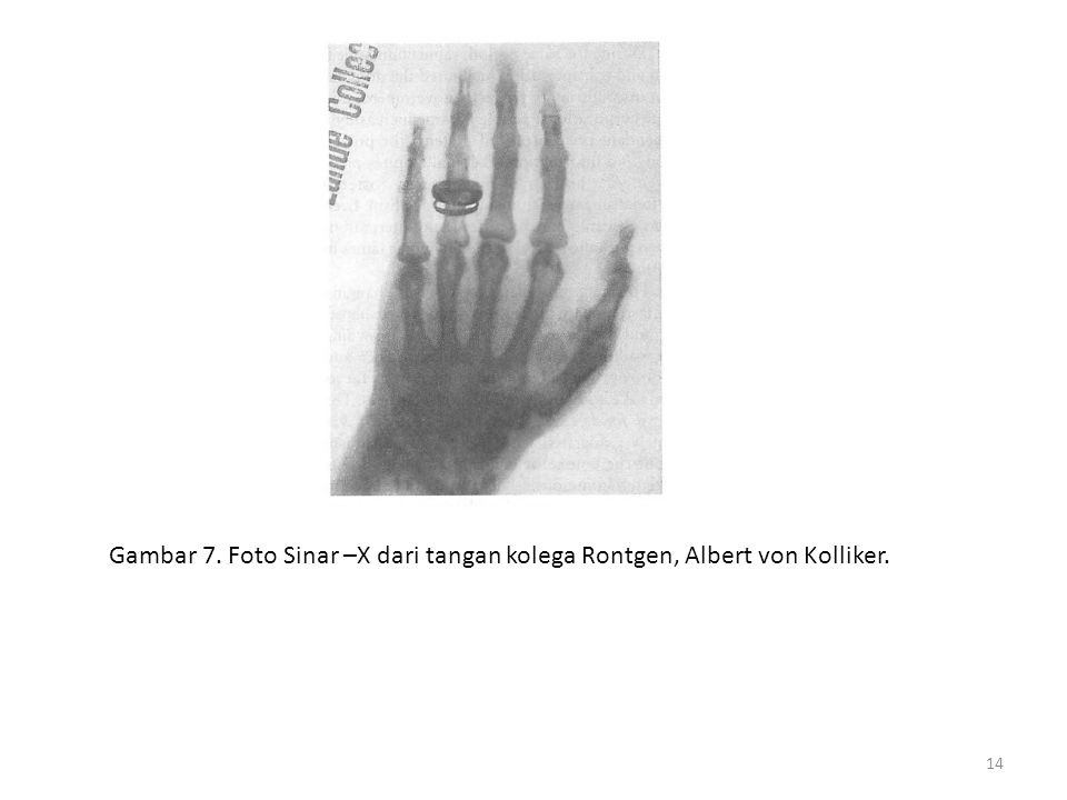 Gambar 7. Foto Sinar –X dari tangan kolega Rontgen, Albert von Kolliker.