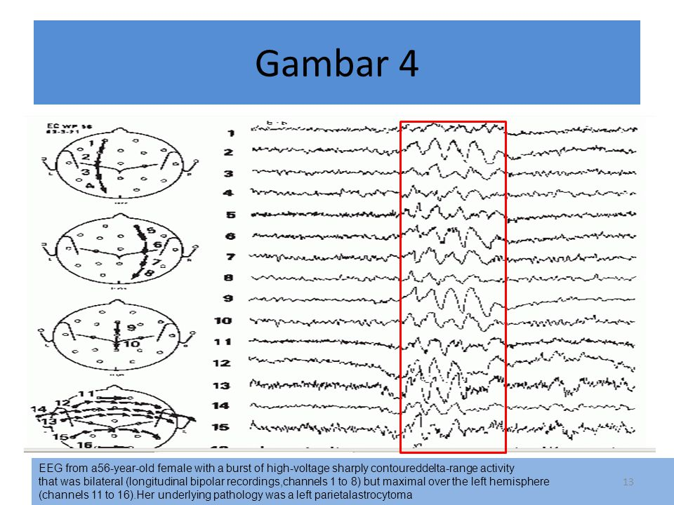 Gambar 4 EEG from a56-year-old female with a burst of high-voltage sharply contoureddelta-range activity.