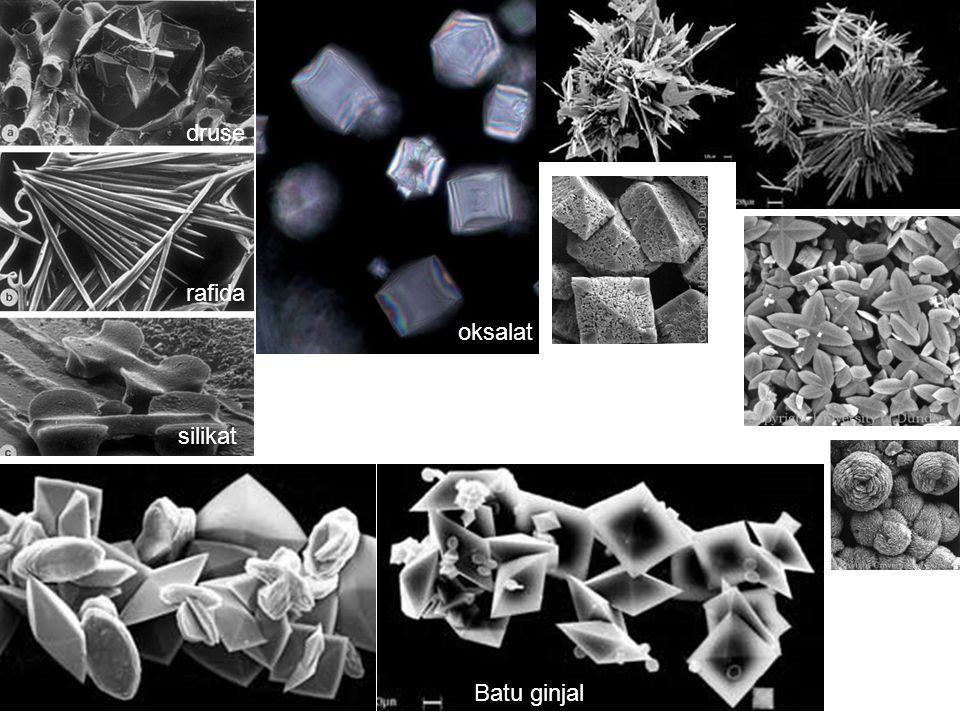 druse rafida oksalat silikat Batu ginjal
