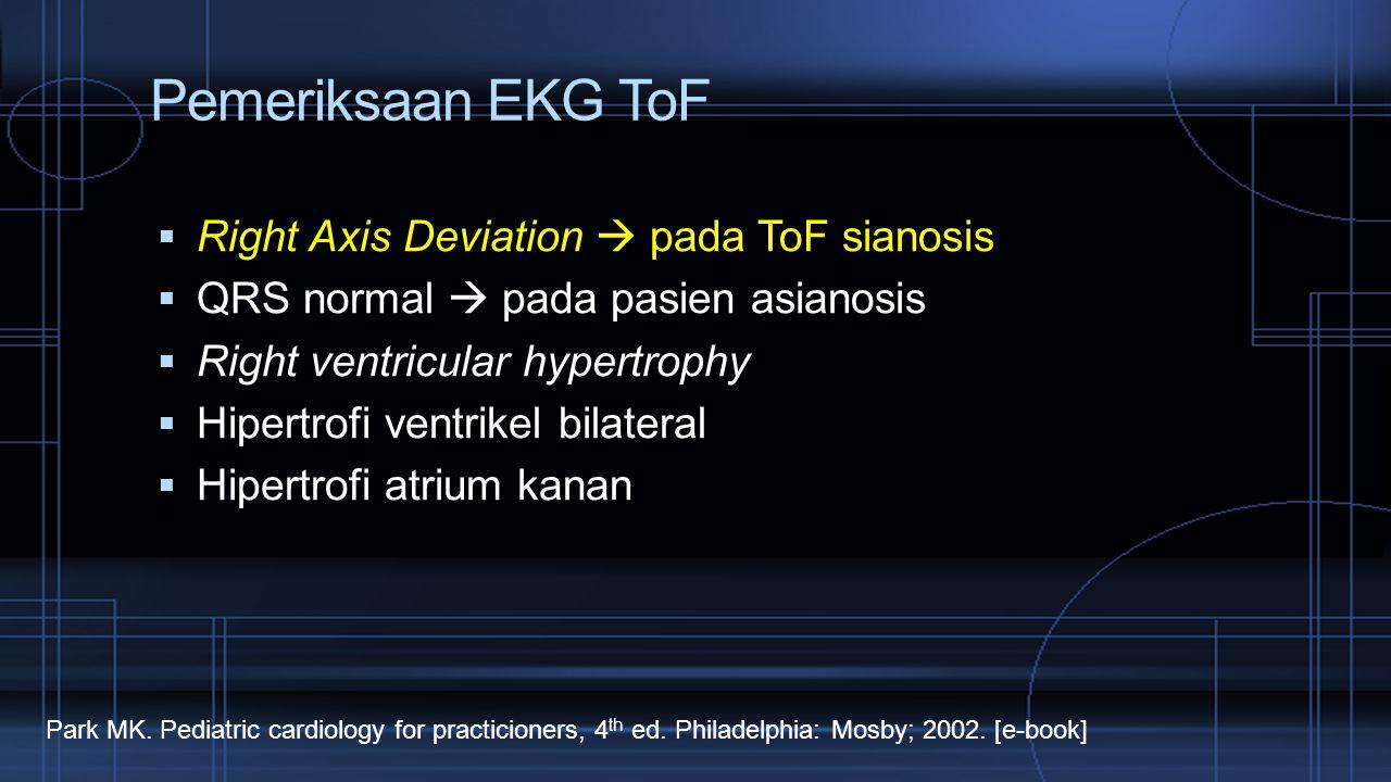 Pemeriksaan EKG ToF Right Axis Deviation  pada ToF sianosis