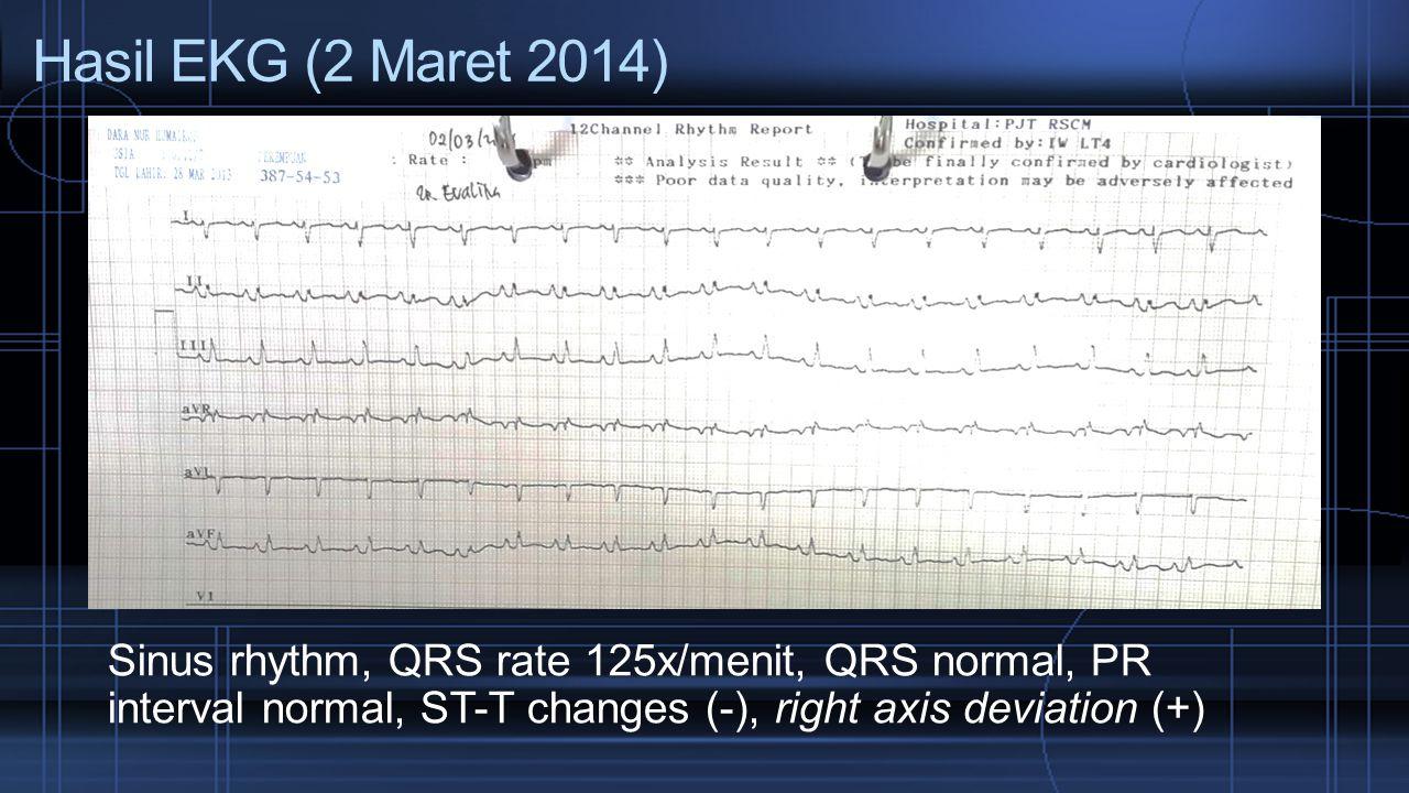 Hasil EKG (2 Maret 2014) Sinus rhythm, QRS rate 125x/menit, QRS normal, PR interval normal, ST-T changes (-), right axis deviation (+)