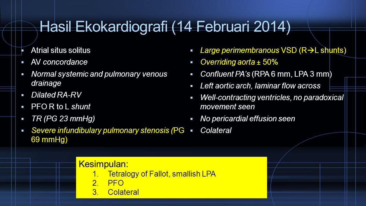 Hasil Ekokardiografi (14 Februari 2014)