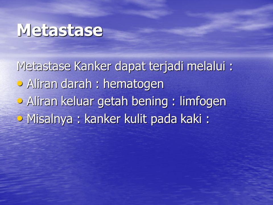 Metastase Metastase Kanker dapat terjadi melalui :