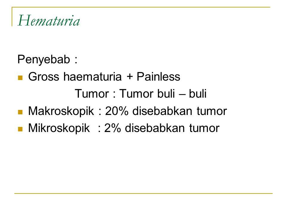 Hematuria Penyebab : Gross haematuria + Painless