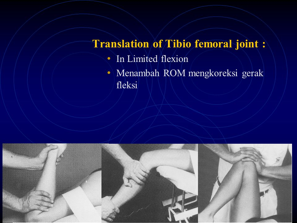 Translation of Tibio femoral joint :
