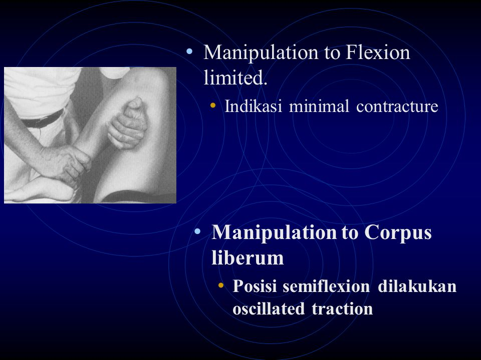 Manipulation to Flexion limited.