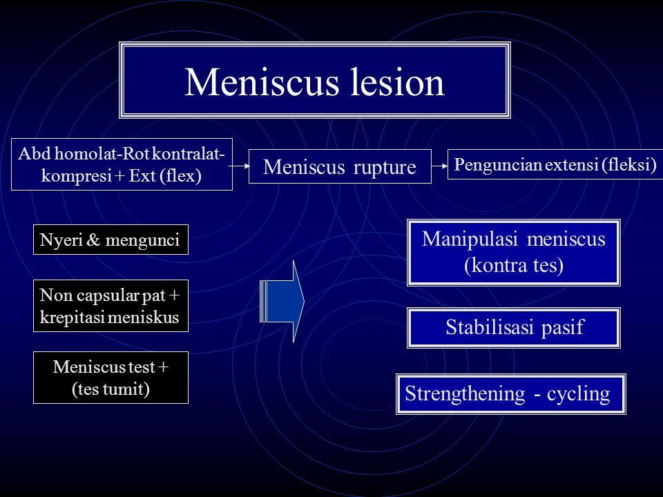 Meniscus lesion Meniscus rupture Manipulasi meniscus (kontra tes)