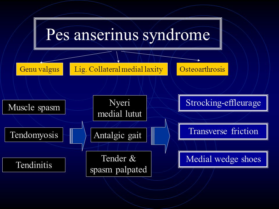 Pes anserinus syndrome