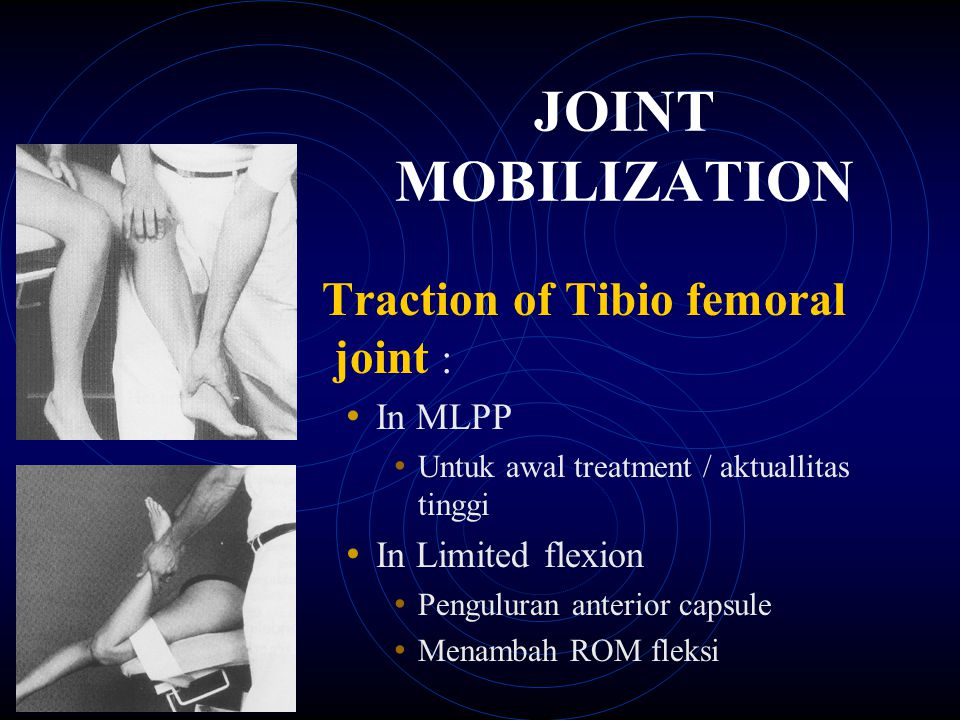 JOINT MOBILIZATION Traction of Tibio femoral joint : In MLPP