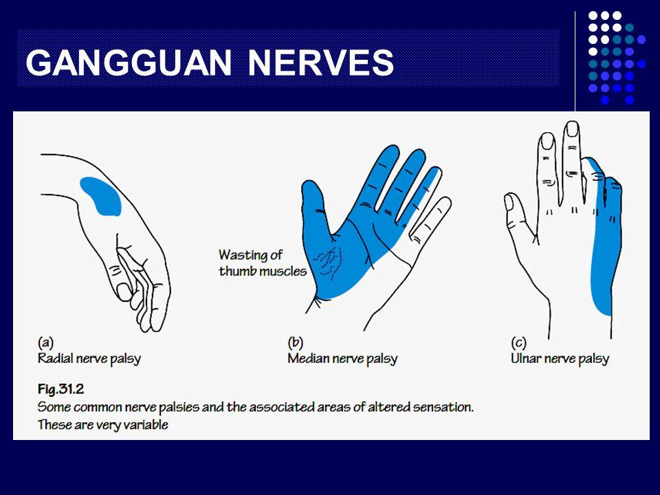 GANGGUAN NERVES