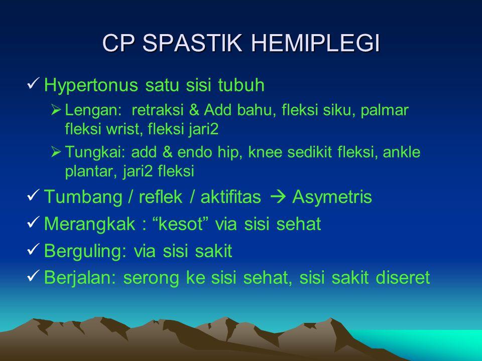 CP SPASTIK HEMIPLEGI Hypertonus satu sisi tubuh