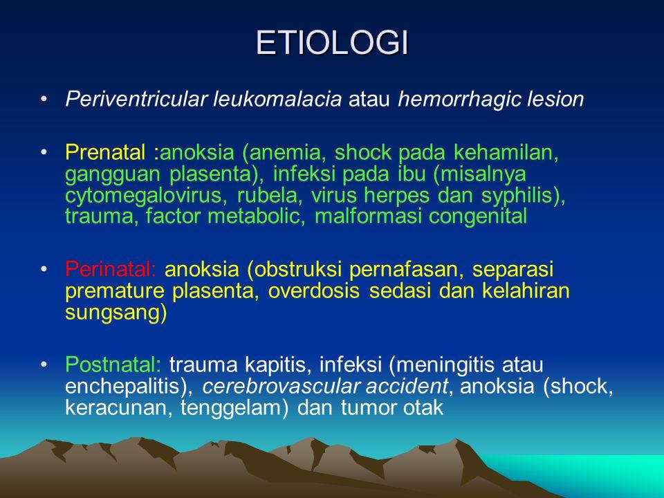 ETIOLOGI Periventricular leukomalacia atau hemorrhagic lesion