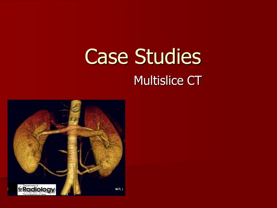 Case Studies Multislice CT